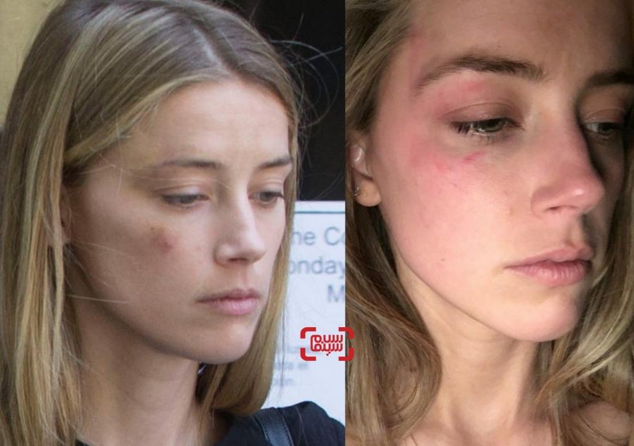 کبودی صورت امبر هرد به دلیل خشونت جانی دپ